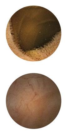 CapsoCam Görüntüsü