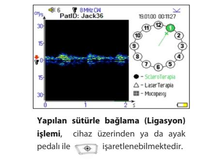 ANGİODİN PROCTO ADL LİGASYON